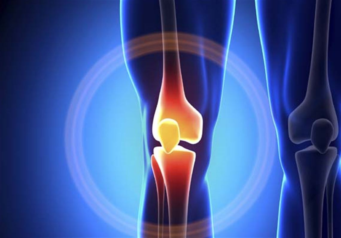 Patients' double whammy: arthritis and meniscus tear in the