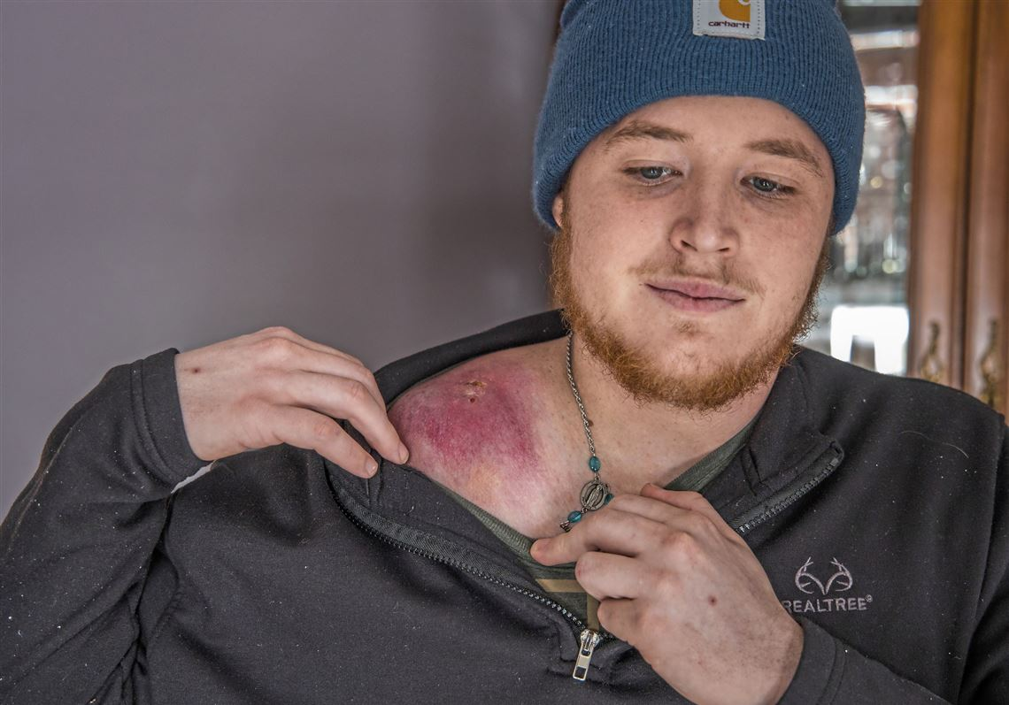 Mitchell Barton, 21, shows scarring from a large Ewing sarcoma tumor on his shoulder on Wednesday, Jan. 22, 2019, at his home in North Strabane. Six cases of Ewing sarcoma have occurred within the Canon-McMillan School District boundaries since 2008, including two cases diagnosed in the past nine months.